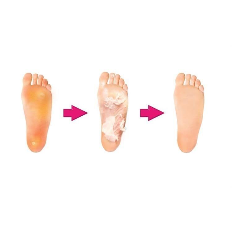 Calus pe picior: tratamente la domiciliu