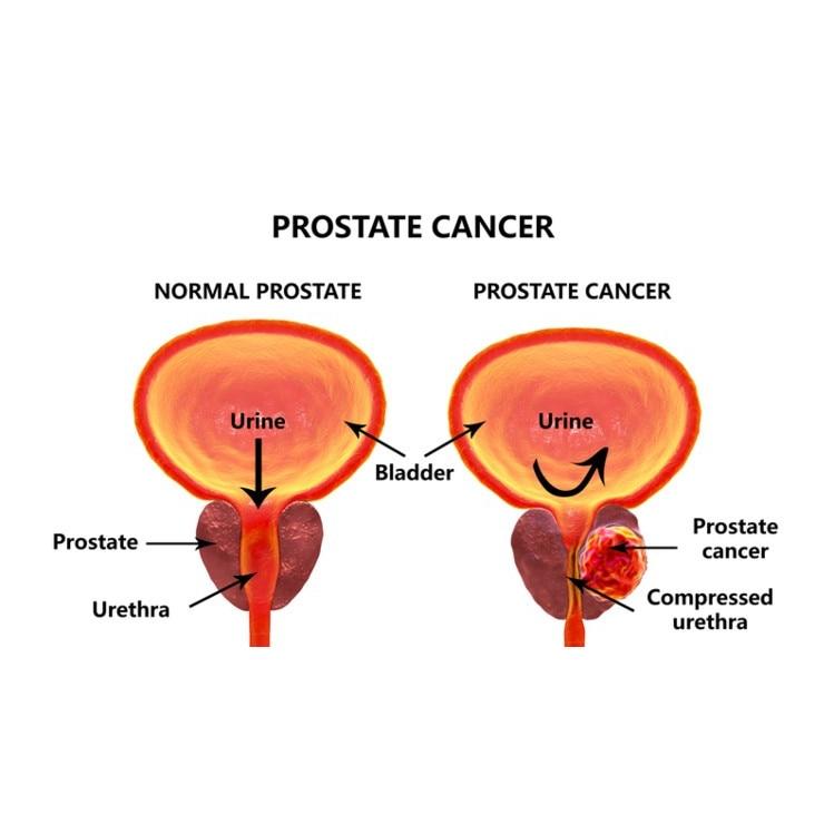 immunotherapy prostate cancer clinical trials Chabret a prosztatitis kezelésére