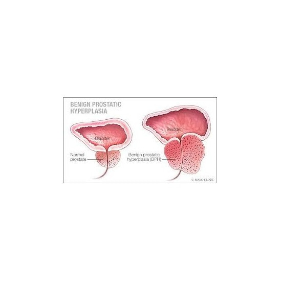 A prostatitis cink kezelése