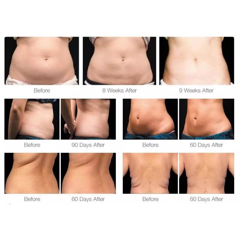 8 mituri despre pierderea în greutate care vă impiedică să aveți rezultate - GymBeam Blog