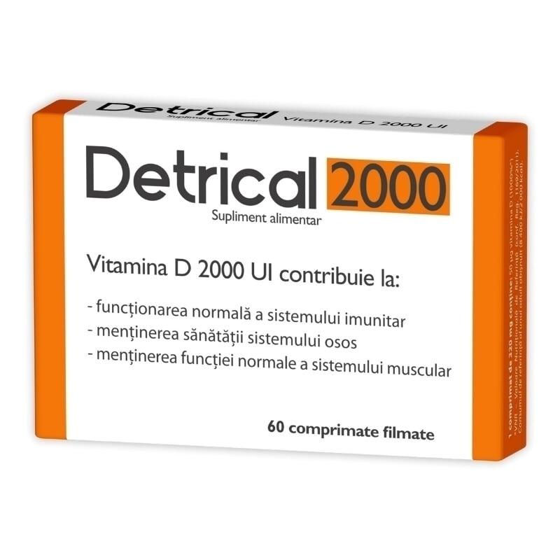 detrical 4000 pareri)